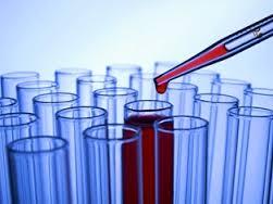 Анализ крови на гормоны: почему он нужен, и как к нему готовиться