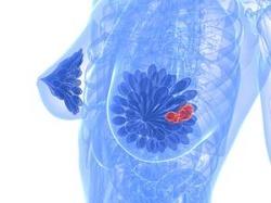 Заболевания молочных желез: коварная мастопатия