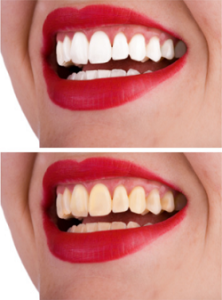 Цвета помады, которые делают ваши зубы более белыми