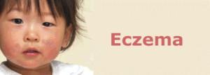 Лечение детской сухой кожи (экзема)